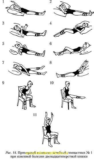 комплекс лечебных упражнений при заболевания суставов